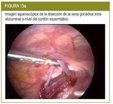 Revista Iberoamericana de Fertilidad:: Varicocele: Fisiopatología ...