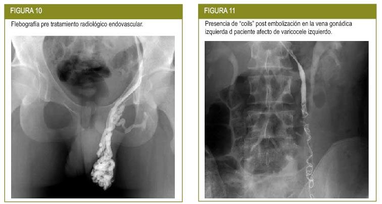 Varicocele embolization vs surgery