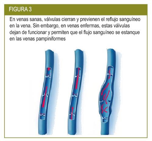 unicul de usturoi cu varicoză