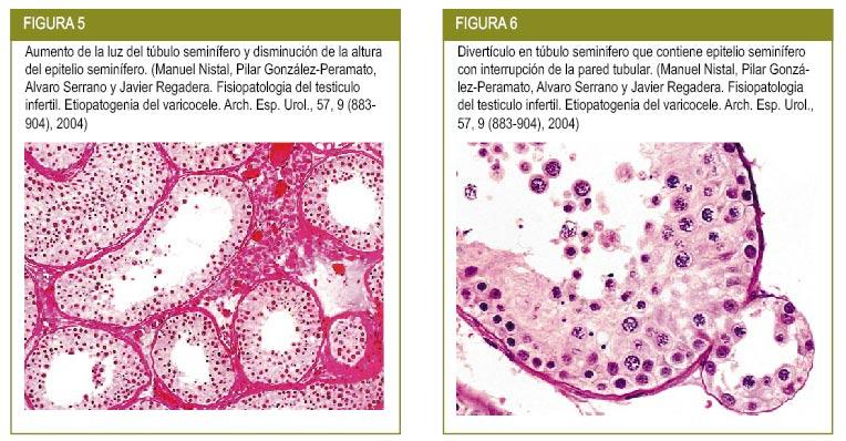de la procedura de varicoză