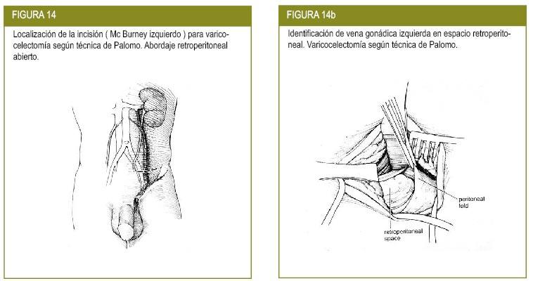 Coágulos de sangre ejercicio recuperación